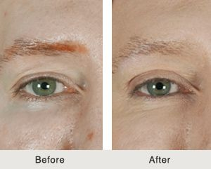 eyelid surgery before and after in charlotte nc