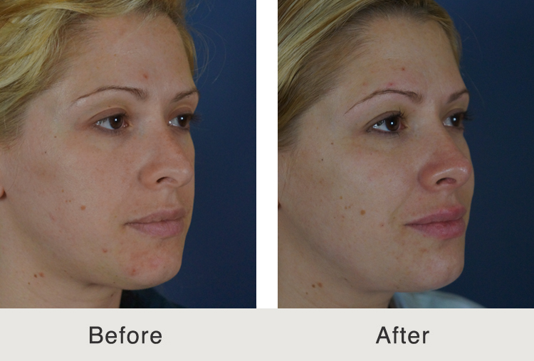 Before And After Rhinoplasty Carolina Facial Plastic