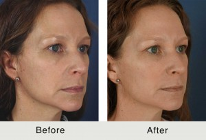 Fillers to Cheeks, Marionette Lines, and Temples
