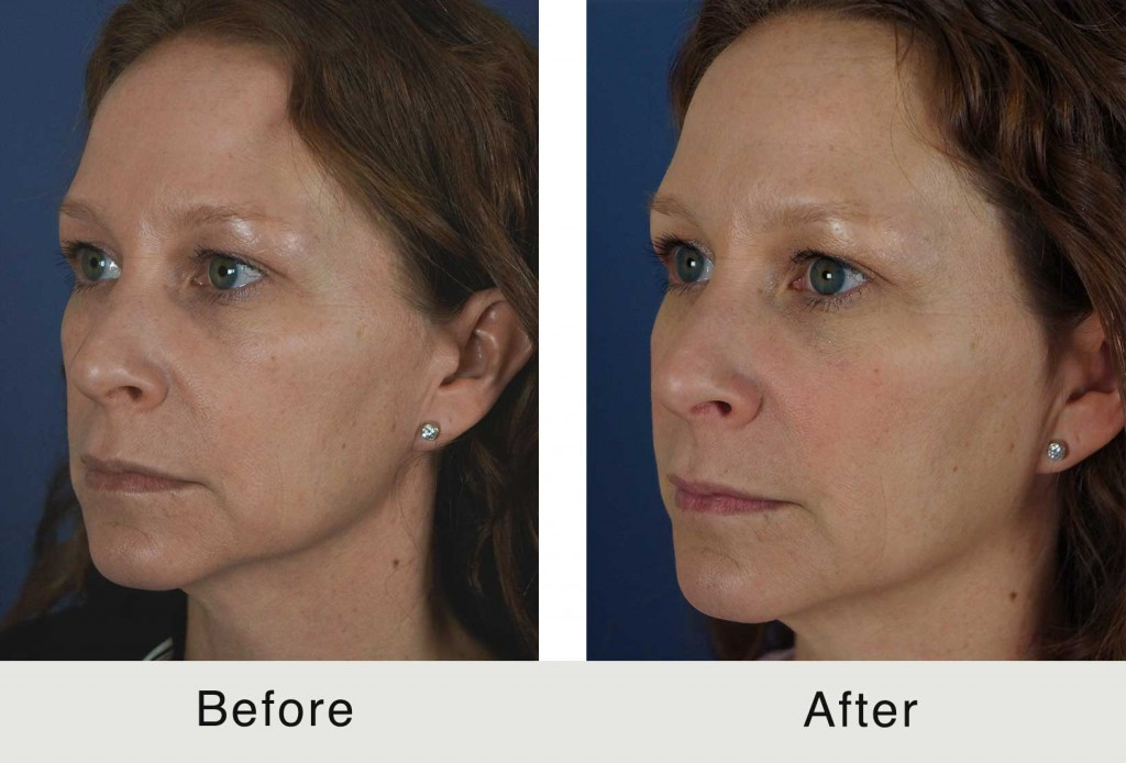 Charlotte-BeforeAfter-Fillers-Cheeks-Maroinette-Temples5-3-24-15