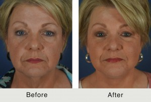 Before and After Female Facial Fat Grafting