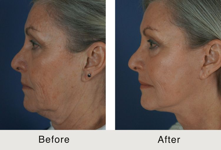 If you want a tighter, tauter, and younger look that can last for up to 8 years, choose a surgical mini-lift in Charlotte, NC
