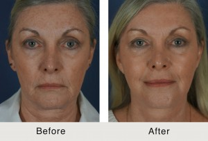 Charlotte-BeforeAfter-MiniLiftChemicalPeel2-3-14-15