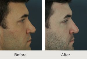 before and after image of a revision rhinoplasty performed on a Charlotte, NC patient