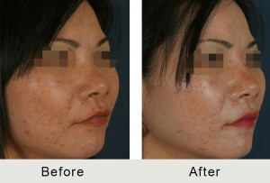 BeforeAfter-Dermal fillers