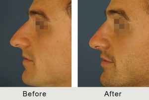 Before and After Male Smaller Nose Rhinoplasty