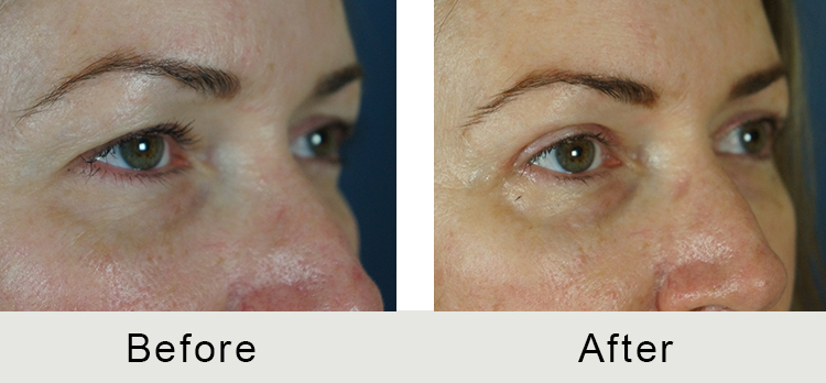 Upper Blepharoplasty | Carolina Facial Plastics