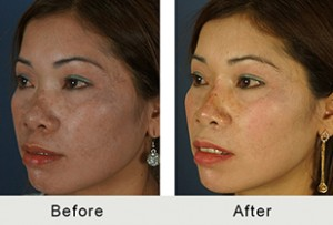 BeforeAfter-Non-surgical-rhinoplasty-reverse-angle