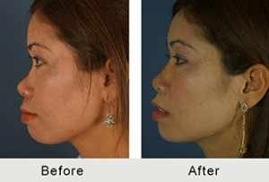 BeforeAfter-Non-surgical-rhinoplasty-side