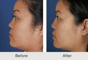 Nasal Tip Plastic Surgery in Charlotte