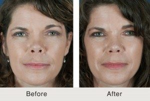 cosmetic nose surgeon in Charlotte
