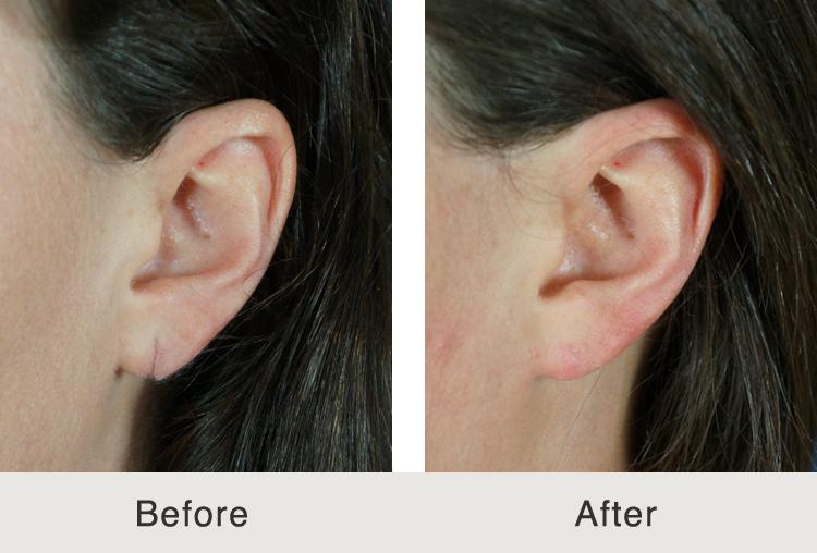 Carolina Facial Plastic Ear Reconstruction