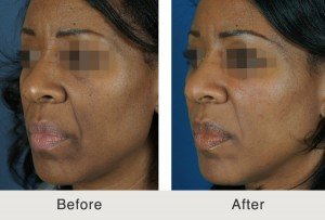 Charlotte Facial Filler Augmentation Treatment