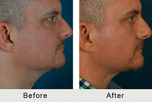 Before and After Liposuction to Neck