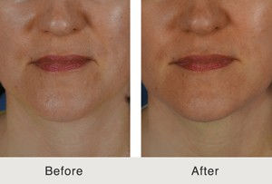 Fillers-to-Jawline-and-Marionette-before&after2-12-26-13