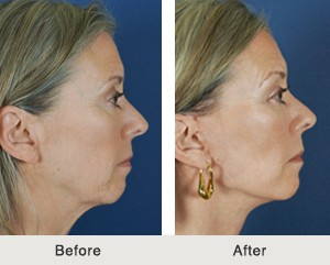 Charlotte Facelift Filler