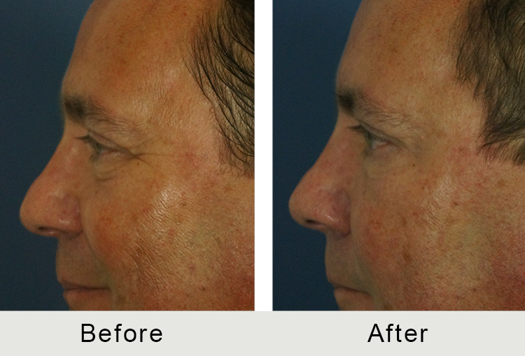Charlotte Men Injectable Facial Treatment