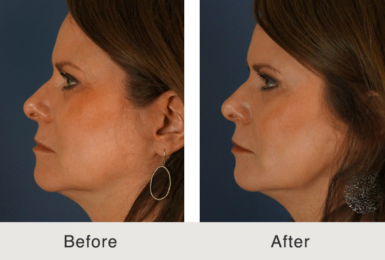 North Carolina Facial Plastic Injectables