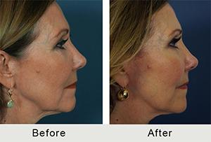 Female Facial Fat Grafting