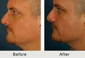 Before & After Chin Implant in Charlotte