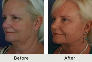 Charlotte Facelift Plastic Surgery