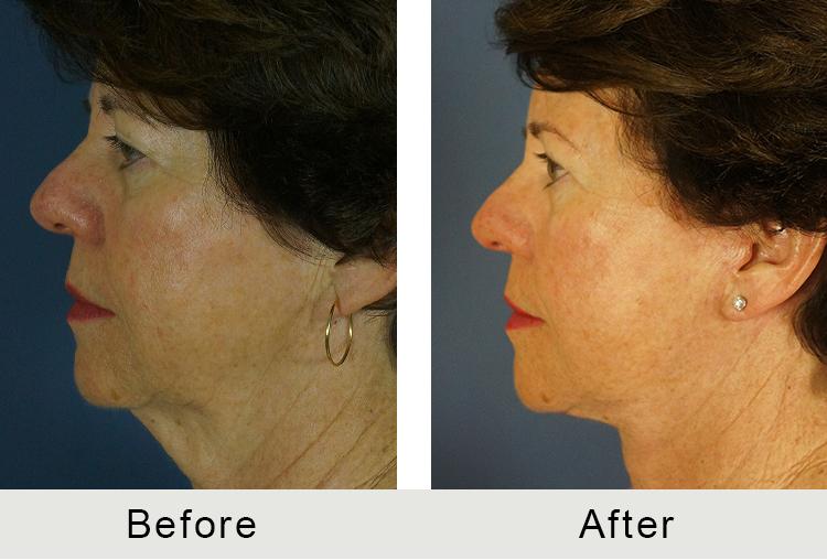 Turkey Neck Surgery Nc Carolina Facial Plastics