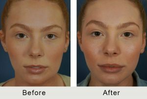 Charlotte Lip Fillers Cosmetic Dermatologist
