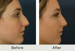 Carolina Surgical Nose Treatment Specialist Before and After