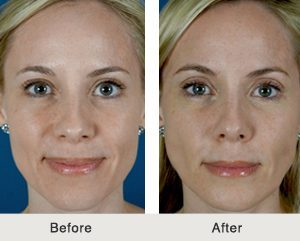 our expert injectors use dermal fillers to add lost volume on facial features in Charlotte, NC