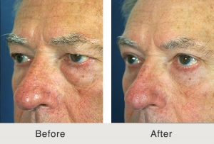 Quad Blepharoplasty to Eliminate Undereye Bags in Charlotte