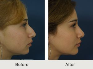 Before & After Chin Implant & Neck Liposuctio