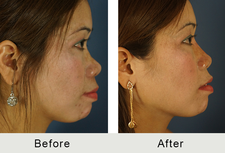 Dr. Kulbersh creates a non-surgical rhinoplasty with dermal fillers that fill in the spaces between your nose bumps, creating a smooth and visually appealing surface.