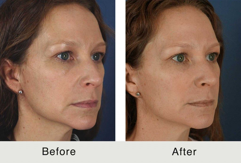 North Carolina Facial Plastics Dermal Fillers Treatment
