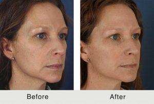 North Carolina Facial Plastics Dermal Fillers Treatment