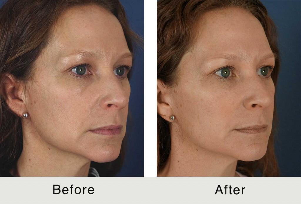 North Carolina Facial Injectable Rejuvenation Treatment