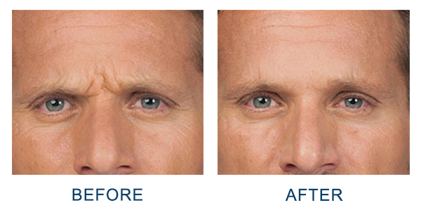 North Carolina Anti-Aging Male Injectable