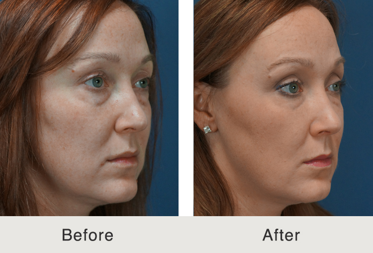 Charlotte Dermal Filler Injectable Procedure