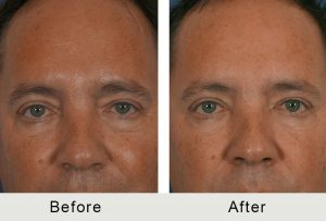 Men Injectable Facial Treatment Charlotte