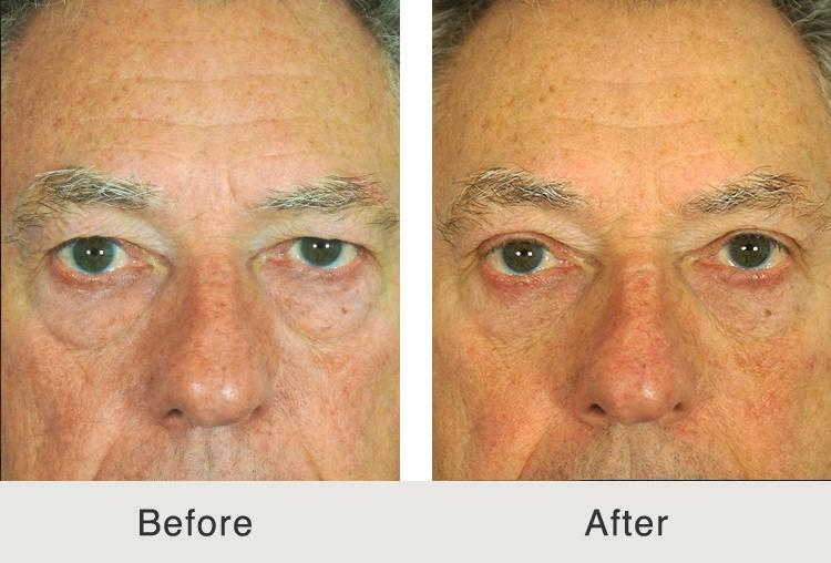 North Carolina Eyelid Surgery Specialist