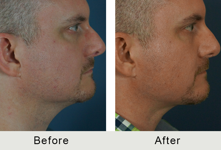 North Carolina Facial Plastic Procedure