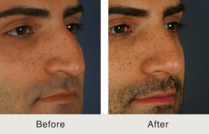 North Carolina Facial Plastic Surgeon