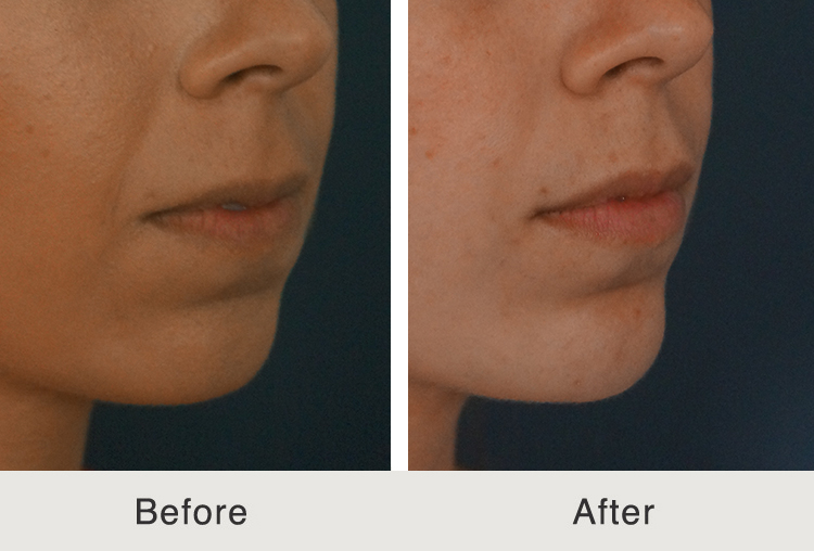 Non Surgical Chin Augmentation with Juvéderm Voluma