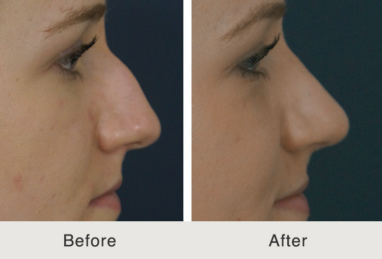 Rhinoplasty to Remove Hump and Improve Tip Shape
