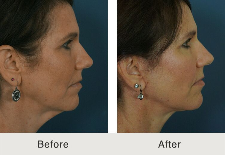 Charlotte Face Lift Surgeon