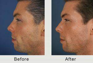 North Carolina Nasal Injectable Treatment