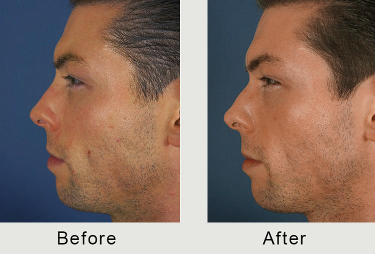 El tratamiento de Carolina del Norte nasal inyectable