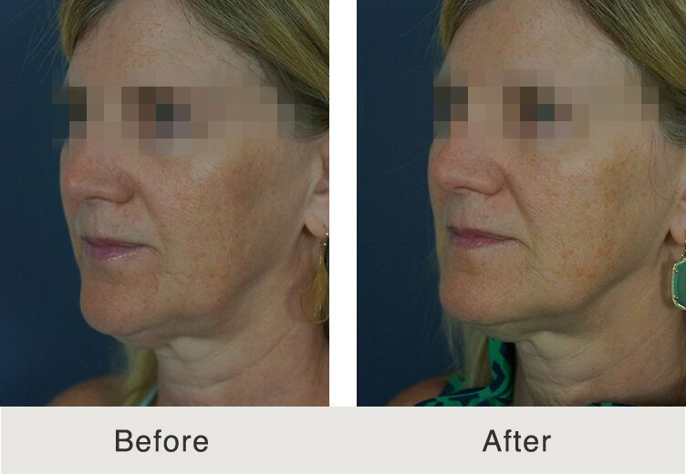 North Carolina Facial Filler Juvederm