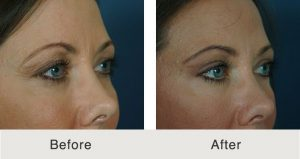 Charlotte eyelid Surgery