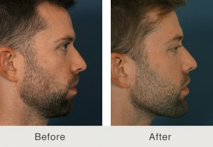 Male Facial Plastics charlotte