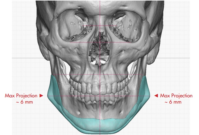 Costumbre mandibular Implante en Charlotte, CAROLINA DEL NORTE